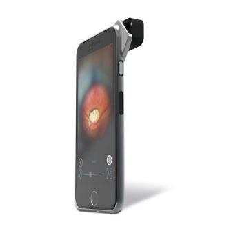 Funduskamera D-EYE für verschiedene Smartphones